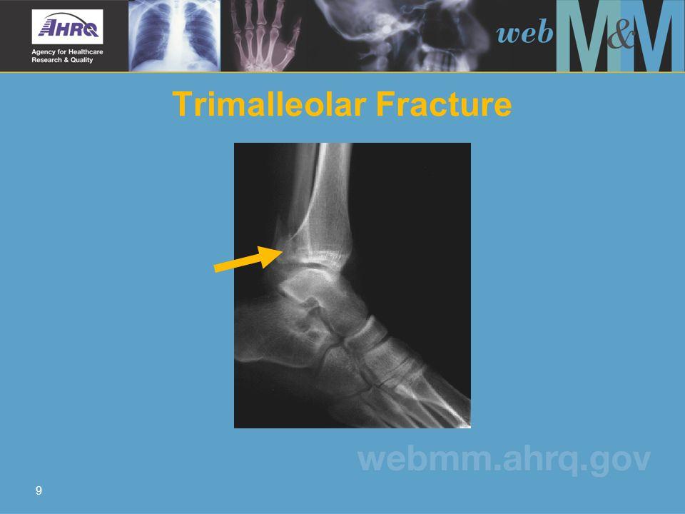 9 Trimalleolar Fracture