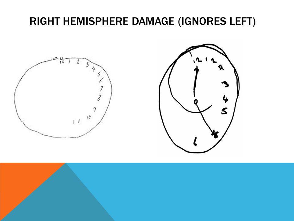 RIGHT HEMISPHERE DAMAGE (IGNORES LEFT)