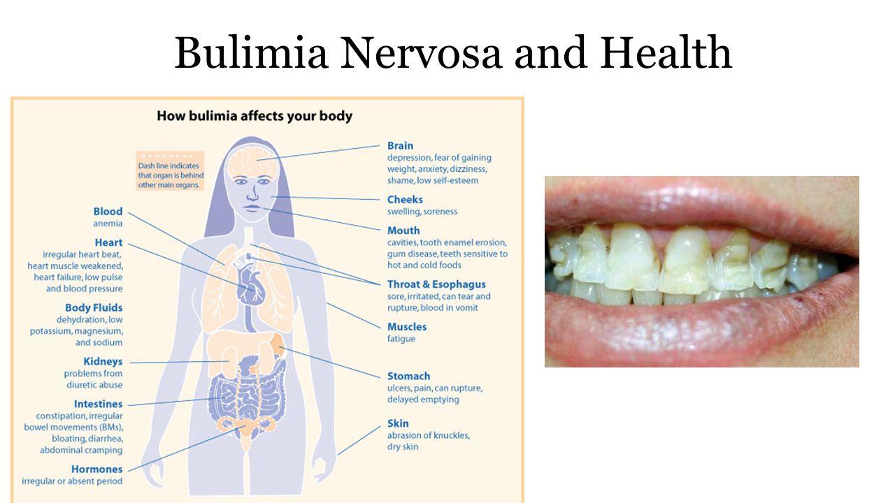 Bulimia Nervosa and Health