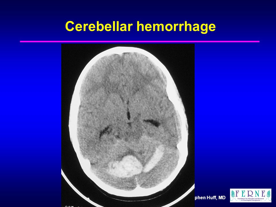 J. Stephen Huff, MD Cerebellar hemorrhage