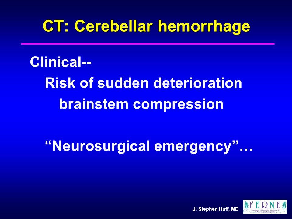 "J. Stephen Huff, MD CT: Cerebellar hemorrhage Clinical-- Risk of sudden deterioration brainstem compression ""Neurosurgical emergency""…"