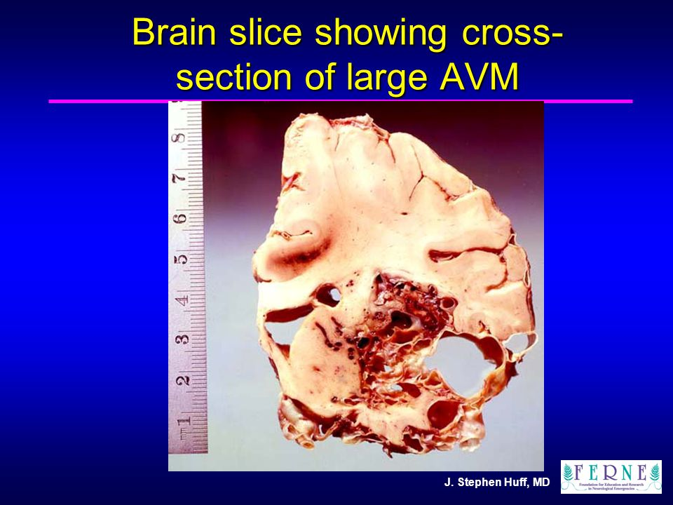 J. Stephen Huff, MD Brain slice showing cross- section of large AVM
