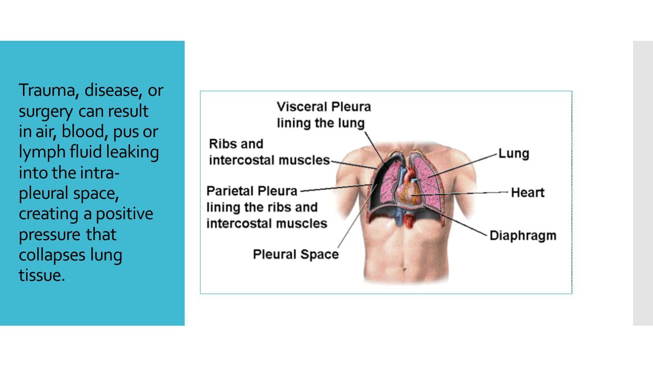 Trauma, disease, or surgery can result in air, blood, pus or lymph fluid leaking into the intra- pleural space, creating a positive pressure that coll