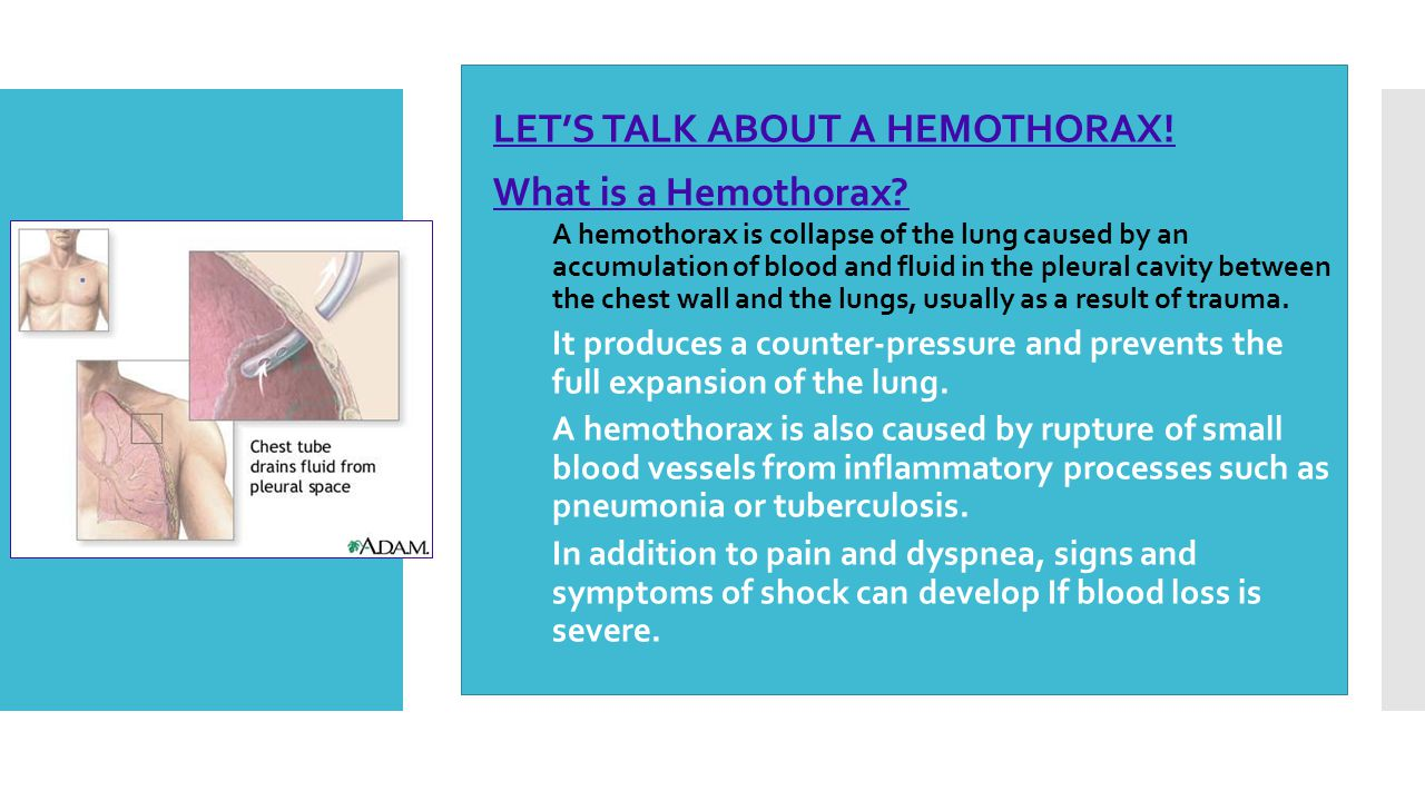  LET'S TALK ABOUT A HEMOTHORAX!  What is a Hemothorax?  A hemothorax is collapse of the lung caused by an accumulation of blood and fluid in the pl