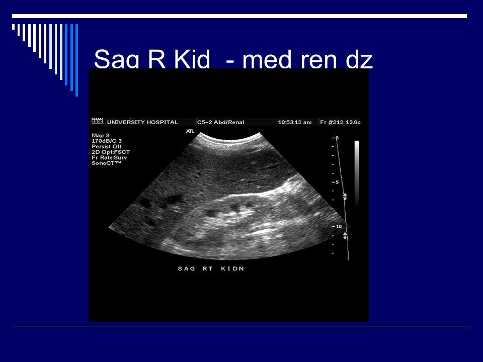 Sag R Kid - med ren dz