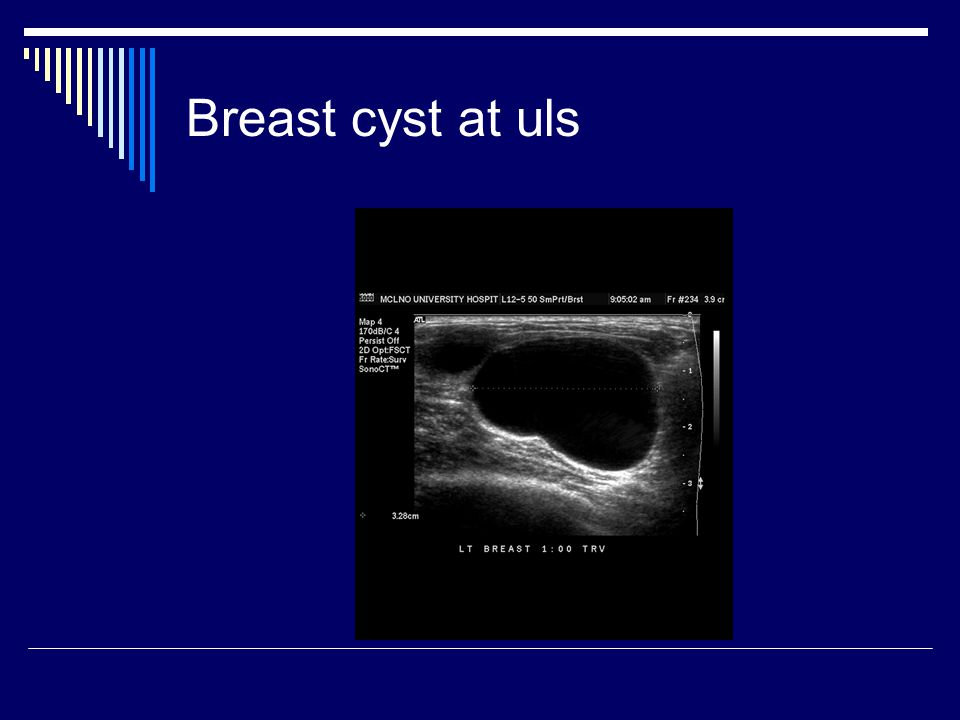 Breast cyst at uls
