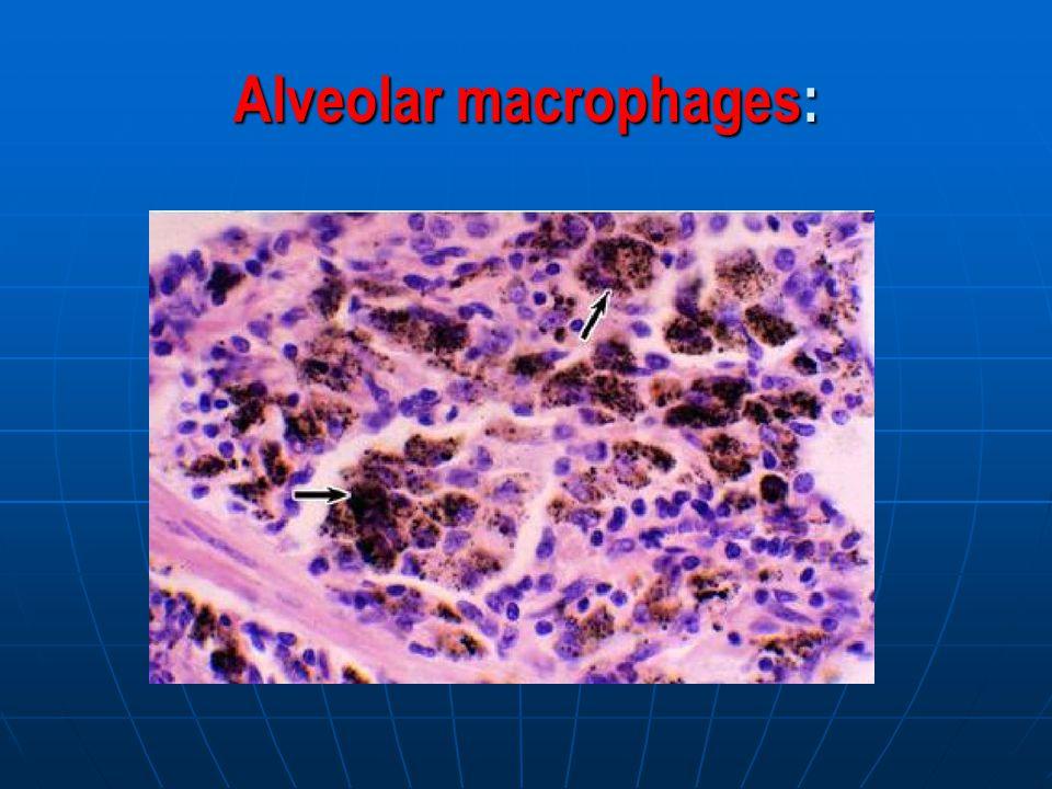 Alveolar macrophages: