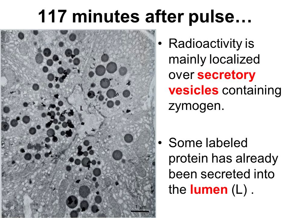 117 minutes after pulse… Radioactivity is mainly localized over secretory vesicles containing zymogen. Some labeled protein has already been secreted