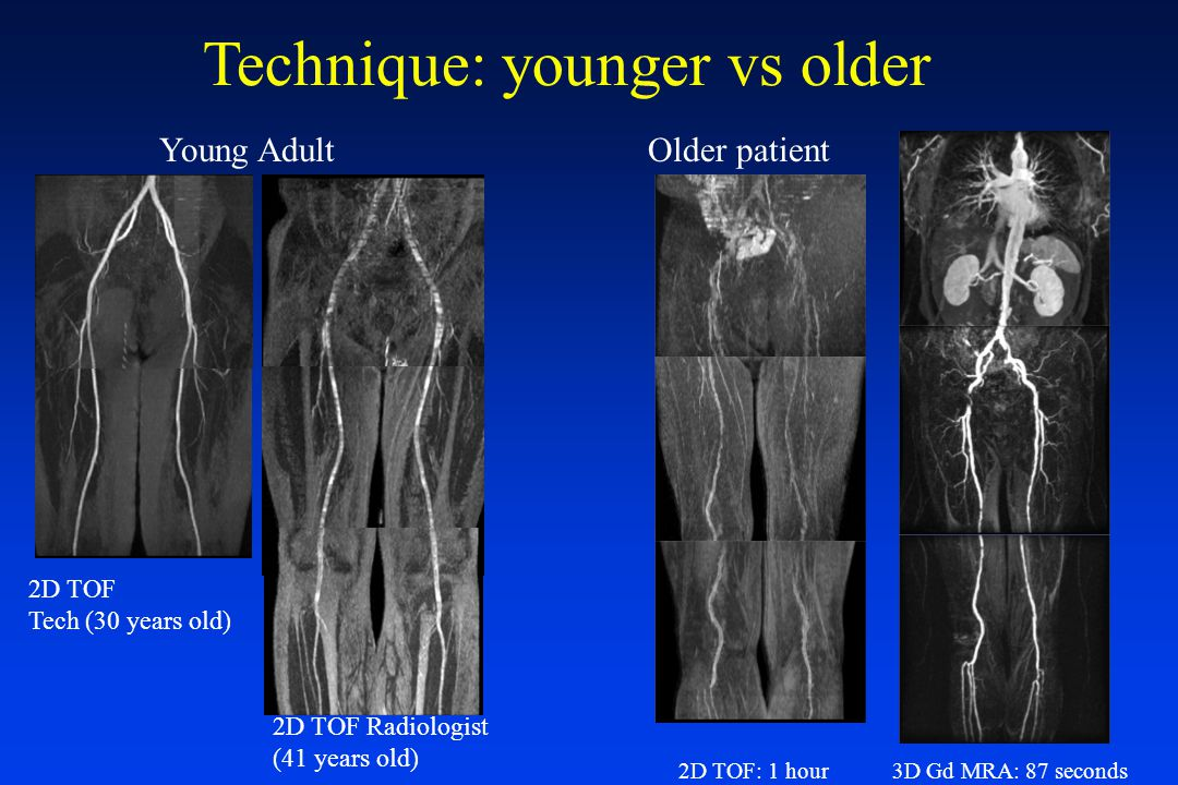 Technique: younger vs older 2D TOF: 1 hour3D Gd MRA: 87 seconds Older patientYoung Adult 2D TOF Tech (30 years old) 2D TOF Radiologist (41 years old)