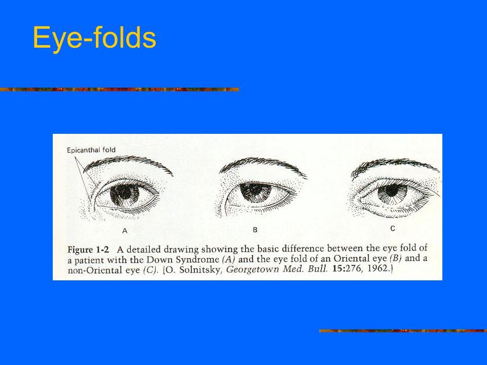 Eye-folds