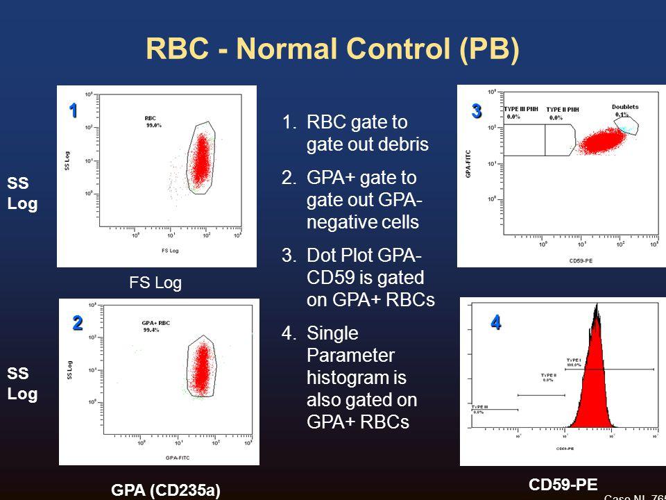 RBC - Normal Control (PB) Case NL-765 SS Log GPA (CD235a) CD59-PE FS Log 1 3 2 4 1.RBC gate to gate out debris 2.GPA+ gate to gate out GPA- negative c