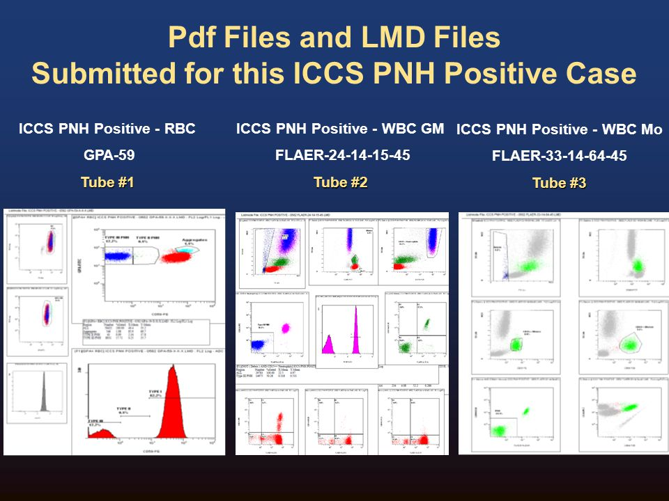 The following slides will include:  Disease Overview and important pre- analytical considerations for PNH Testing (slide 5-13)  Case discussion of PNH Positive case –RBC Testing: Setup, analysis and QC (slide 14-23) –WBC Testing: Setup, analysis and QC (slide 24-31)  Interpretation and Reporting (slide 32-33)