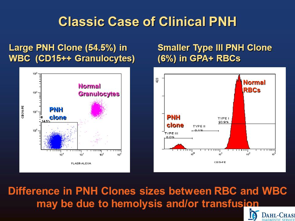 Peripheral Blood of PNH+ Patient WBC - Monocytes Gating on CD45vsSS allows for determination of PNH clone in Monocytes but size of the PNH clone is not accurate (78.9%) Lineage-specific gating on CD64vsSS allows for a more accurate assessment of the size of the PNH clone in Monocytes (83.3) 83.3% 78.9% Tube #3 Tube #2