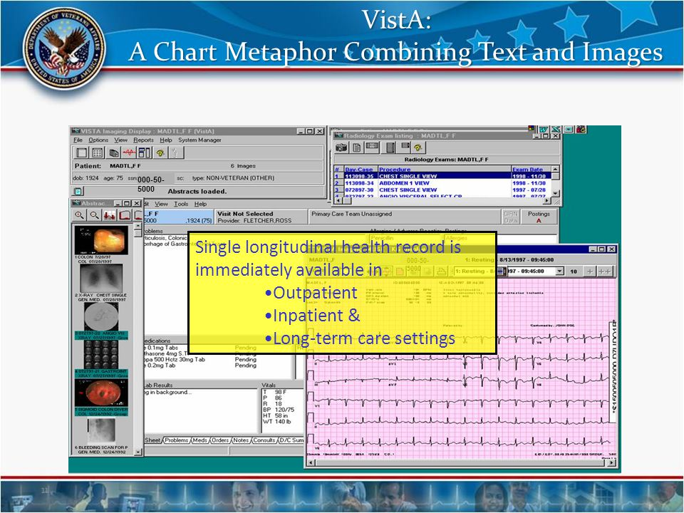 VistA: A Chart Metaphor Combining Text and Images 11 000-50- 5000 Single longitudinal health record is immediately available in Outpatient Inpatient &