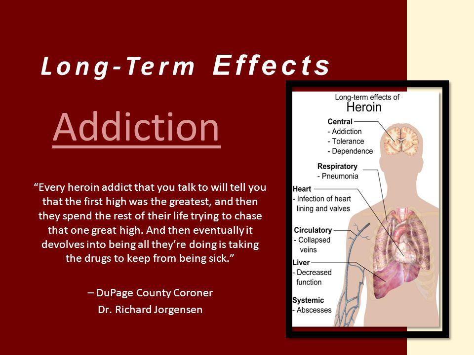 """Long-Term Effects """"Every heroin addict that you talk to will tell you that the first high was the greatest, and then they spend the rest of their life"""