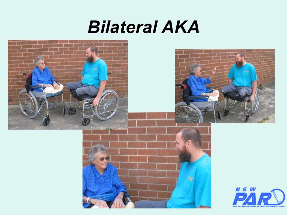Bilateral AKA
