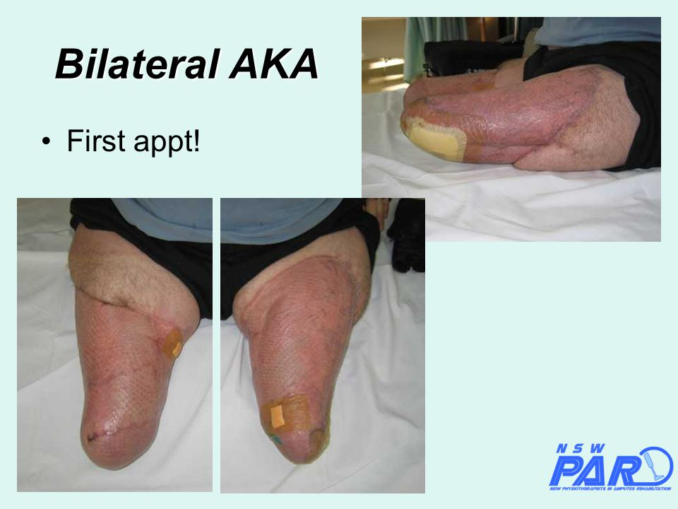 Bilateral AKA First appt!