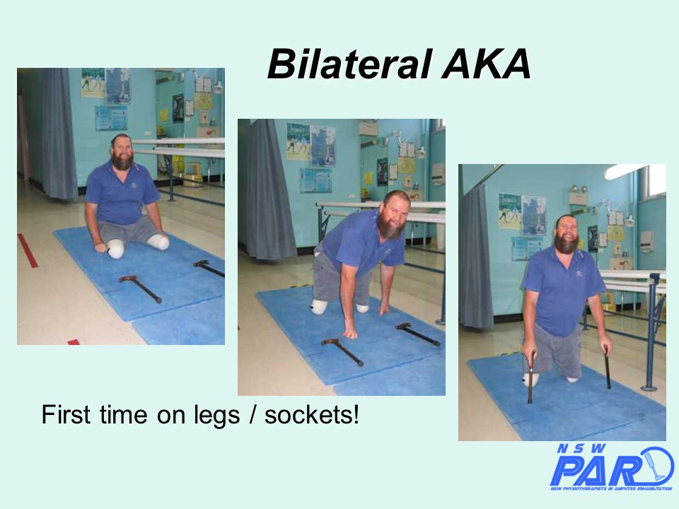 Bilateral AKA First time on legs / sockets!