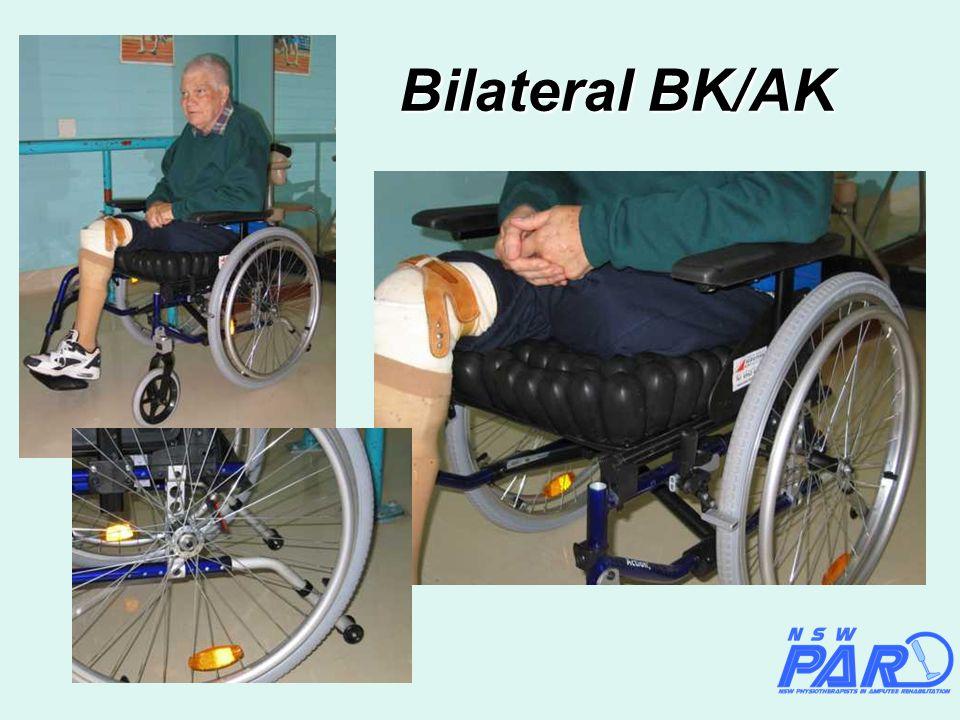 Bilateral BK/AK