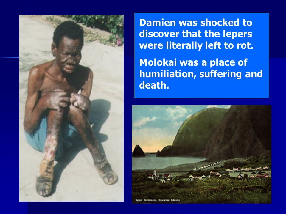 Damien was shocked to discover that the lepers were literally left to rot.