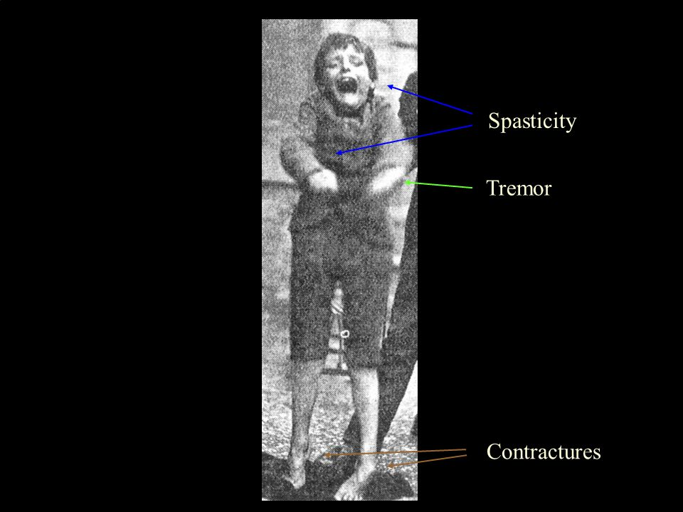 4 Spasticity Contractures Tremor