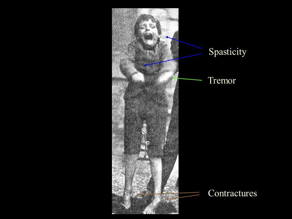 4 Spasticity Contractures Tremor