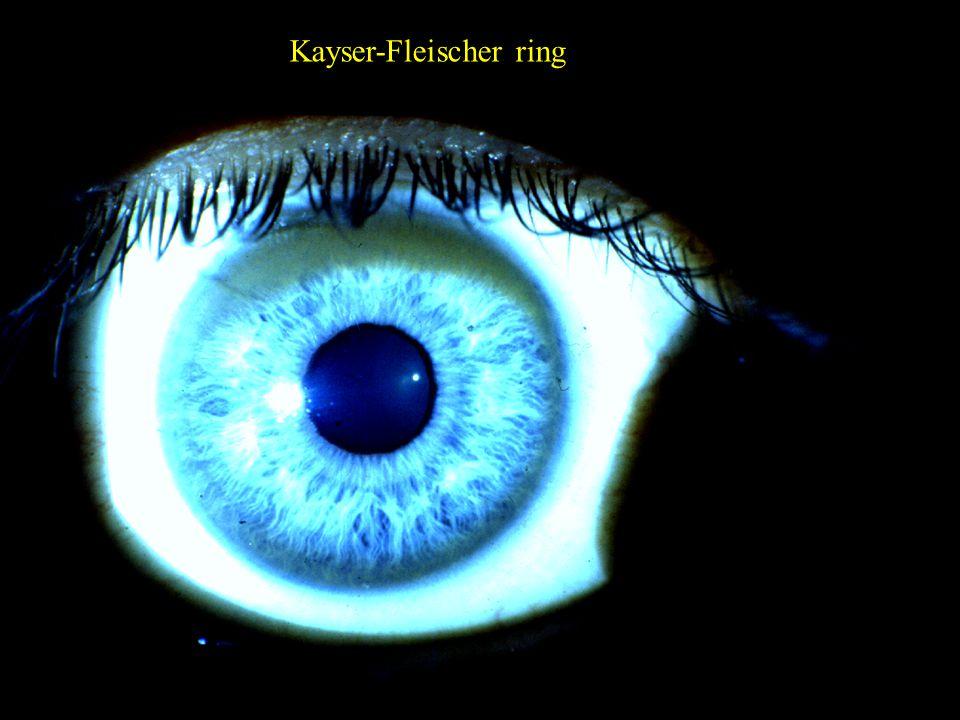 6 Kayser-Fleischer ring