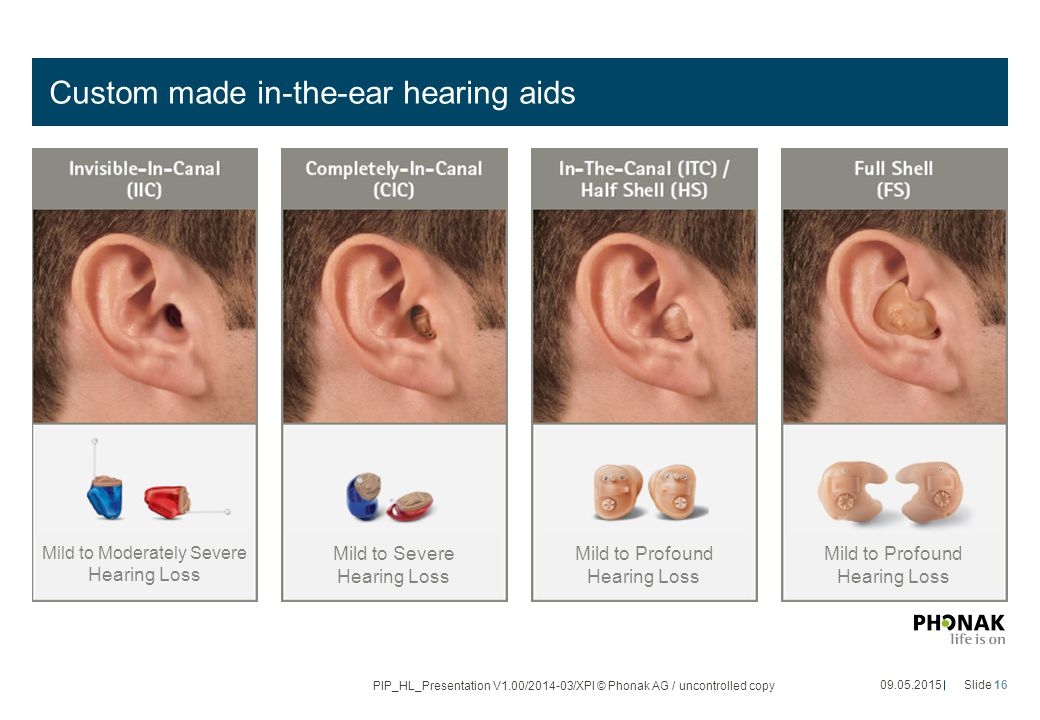 Custom made in-the-ear hearing aids 09.05.2015Slide 16 PIP_HL_Presentation V1.00/2014-03/XPl © Phonak AG / uncontrolled copy Mild to Moderately Severe Hearing Loss Mild to Severe Hearing Loss Mild to Profound Hearing Loss