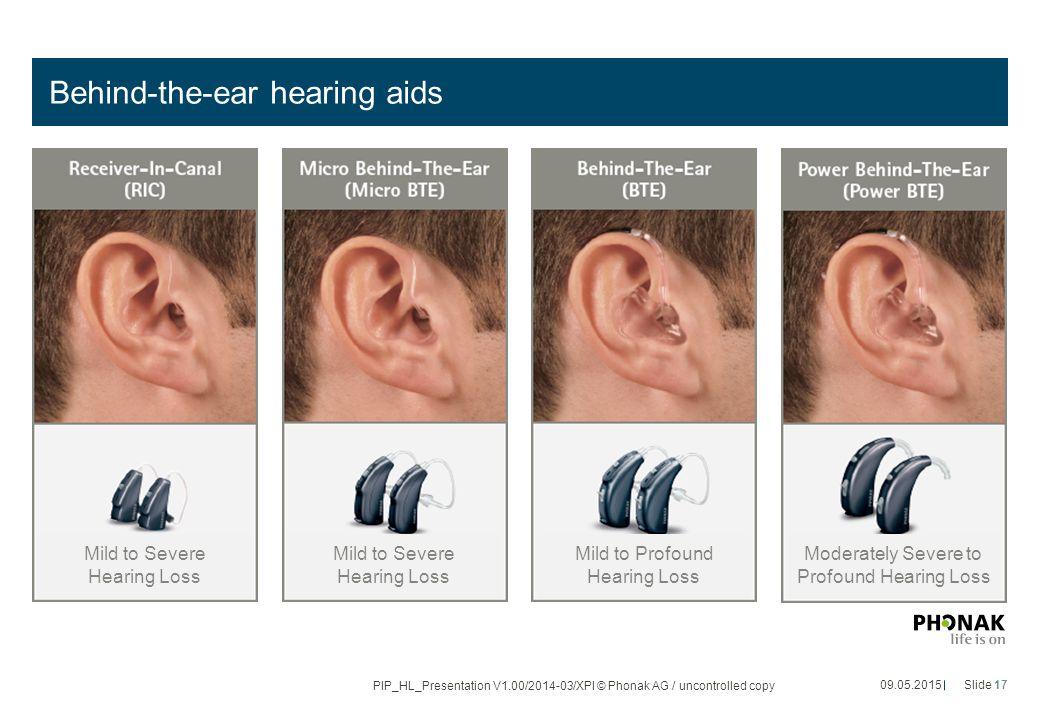 Behind-the-ear hearing aids 09.05.2015Slide 17 PIP_HL_Presentation V1.00/2014-03/XPl © Phonak AG / uncontrolled copy Mild to Severe Hearing Loss Mild to Profound Hearing Loss Moderately Severe to Profound Hearing Loss