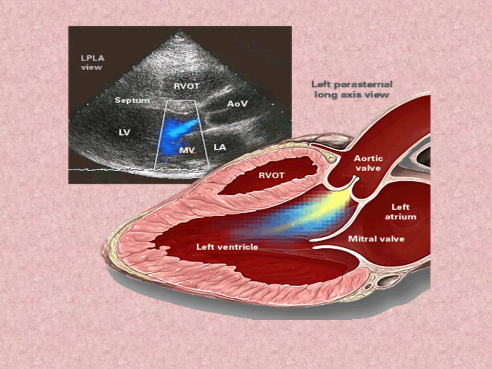 Aortic Insufficiency S 1 is diminished or absent in patients Mitral valve may be prematurely closed when systole begins because of a long PR interval