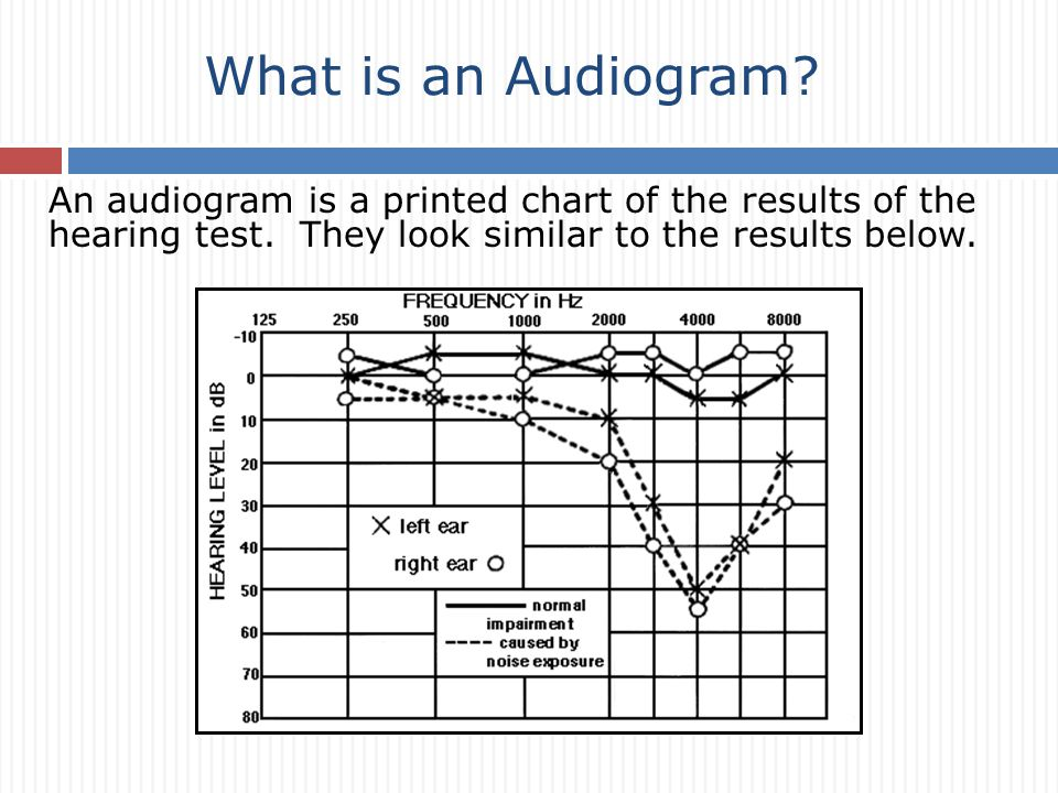 An audiogram is a printed chart of the results of the hearing test.