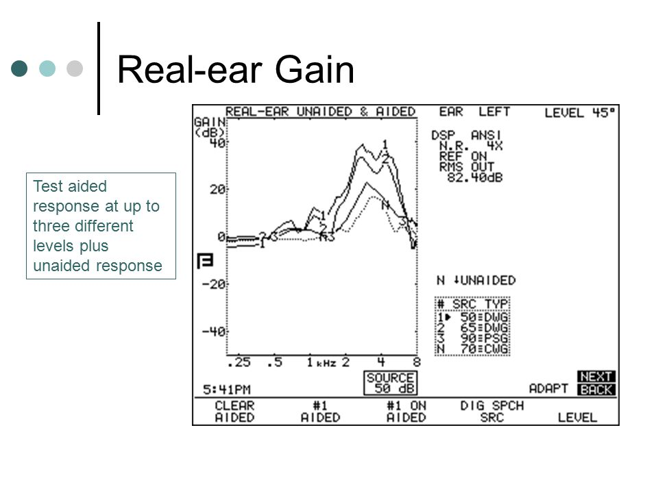 Real-ear Gain Test aided response at up to three different levels plus unaided response