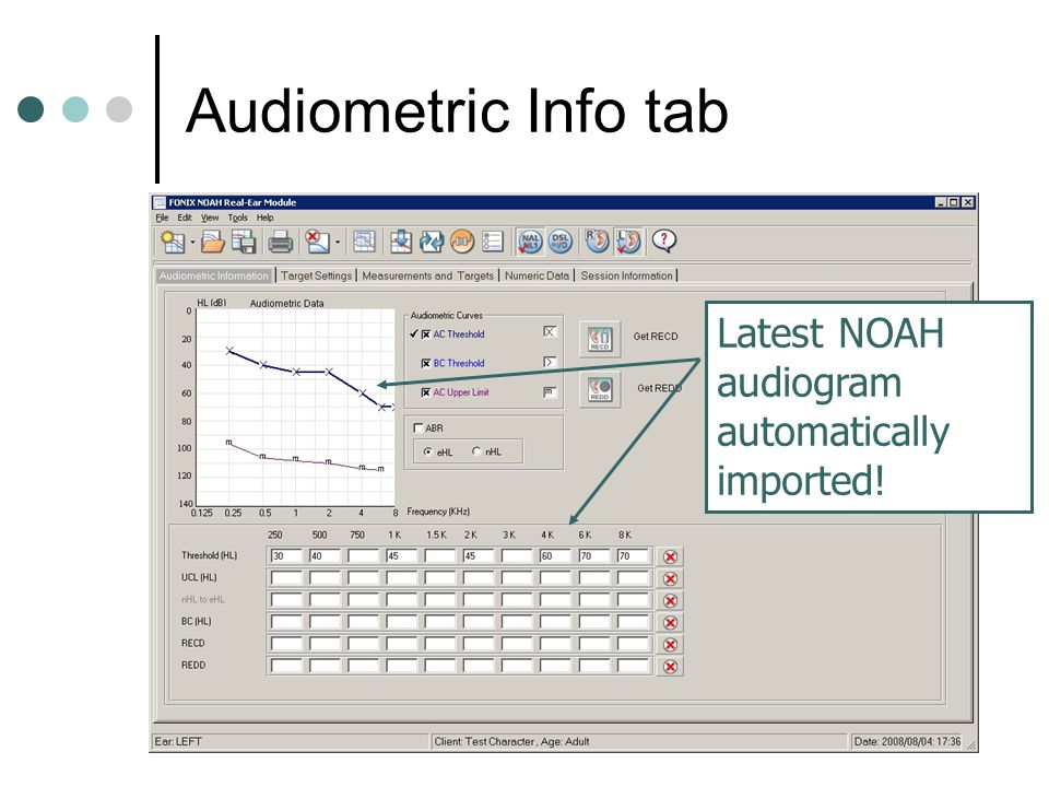 Audiometric Info tab Latest NOAH audiogram automatically imported!