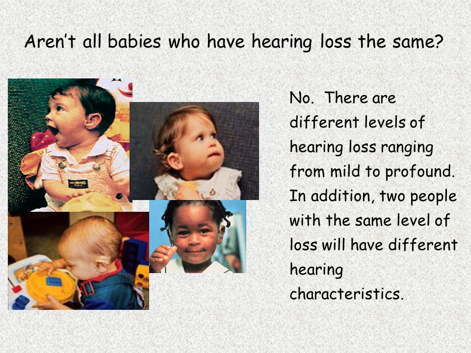 Aren't all babies who have hearing loss the same. No.