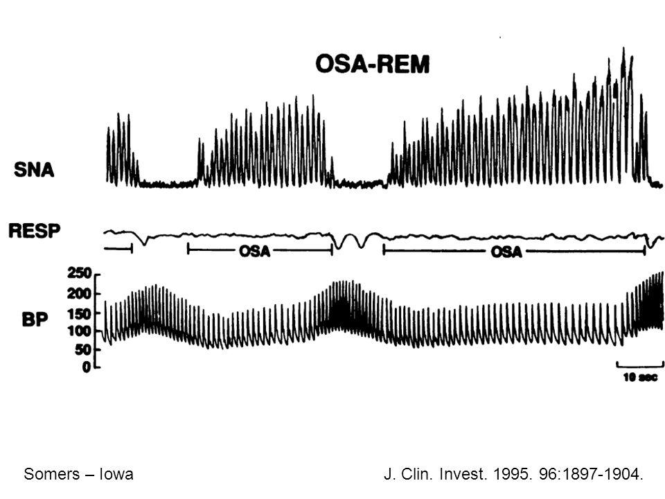 Somers – IowaJ. Clin. Invest. 1995. 96:1897-1904.