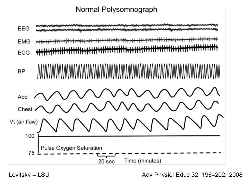 Adv Physiol Educ 32: 196–202, 2008Levitsky – LSU Sleep Apnea Event