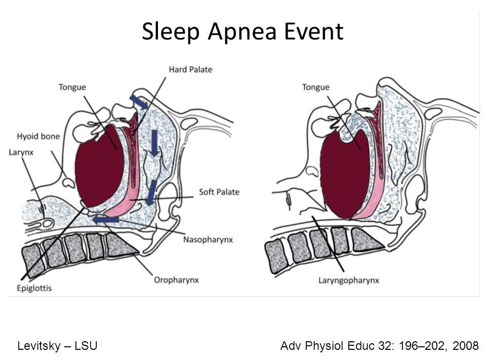Symptoms of OSA  Loud snoring Adv Physiol Educ 32: 196–202, 2008Levitsky – LSU