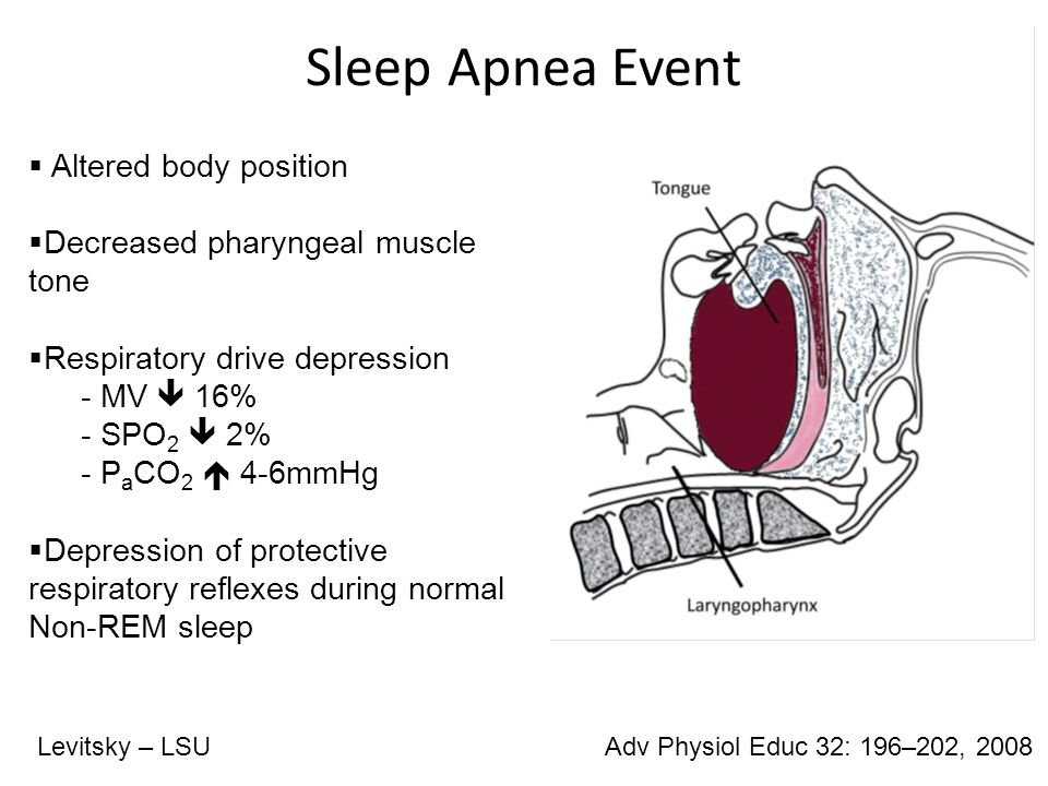 Definitions OSA:  15 or more apneas/hypopneas per hour during sleep, caused by collapse of the upper airway Apnea:  10s or more without airflow Hypopnea:  50% reduction in thoracoabdominal movement lasting for 10s Levitsky – LSUAdv Physiol Educ 32: 196–202, 2008