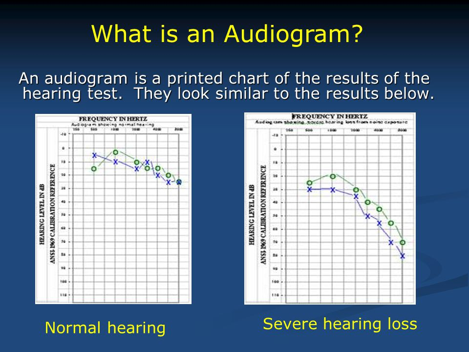 An audiogram is a printed chart of the results of the hearing test. They look similar to the results below. An audiogram is a printed chart of the res