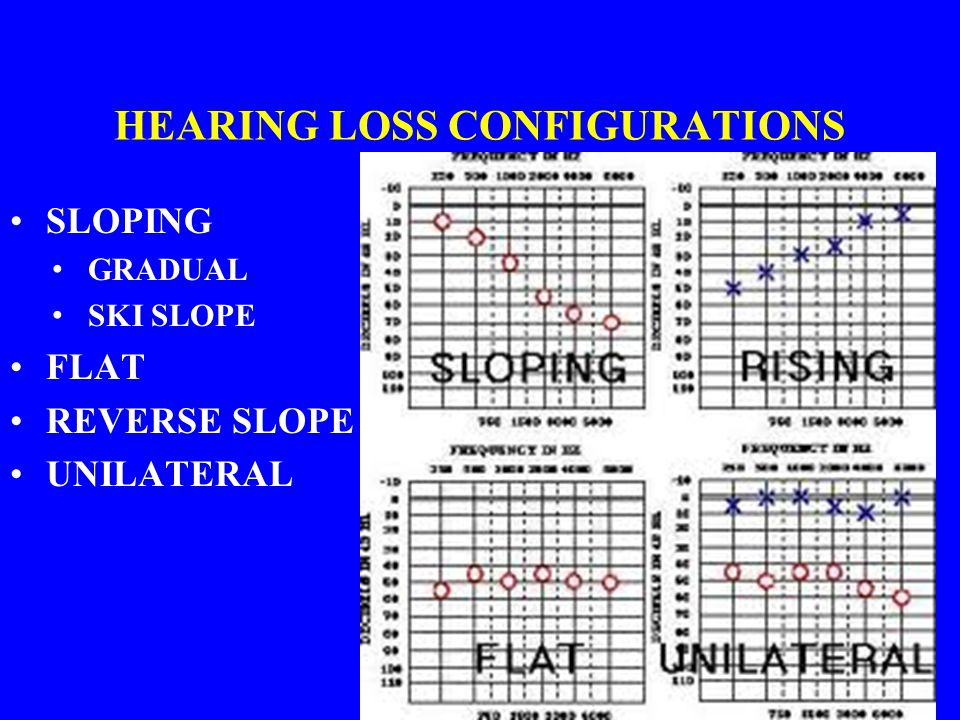 HEARING LOSS CONFIGURATIONS SLOPING GRADUAL SKI SLOPE FLAT REVERSE SLOPE UNILATERAL