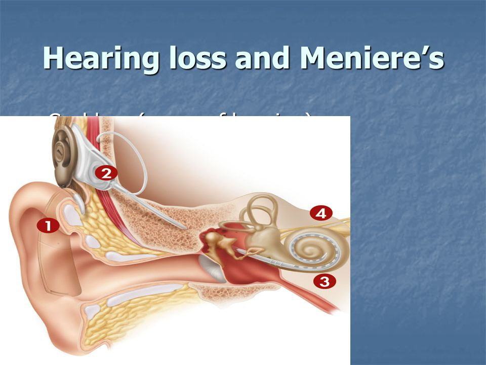 Hearing loss and Meniere's Cochlear (organ of hearing) Cochlear (organ of hearing)
