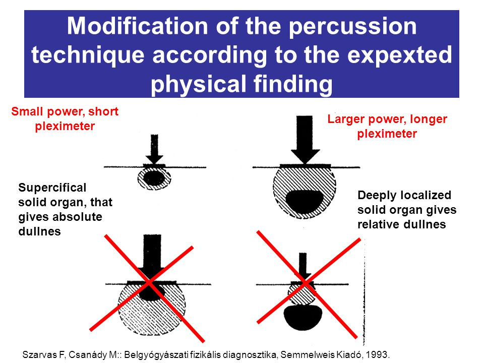 Modification of the percussion technique according to the expexted physical finding Deeply localized solid organ gives relative dullnes Supercifical s