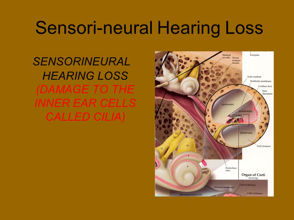 Sensori-neural Hearing Loss SENSORINEURAL HEARING LOSS (DAMAGE TO THE INNER EAR CELLS CALLED CILIA)
