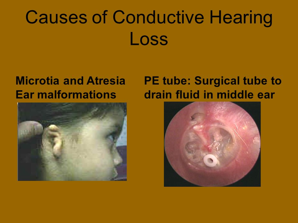 Causes of Conductive Hearing Loss Microtia and Atresia Ear malformations PE tube: Surgical tube to drain fluid in middle ear
