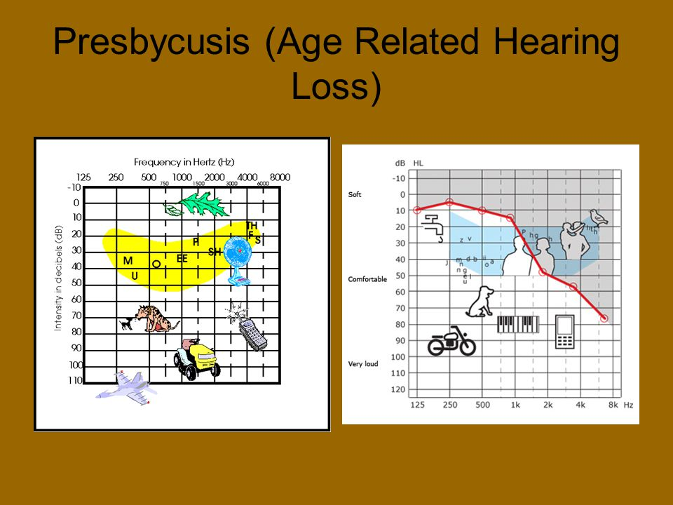 Presbycusis (Age Related Hearing Loss)