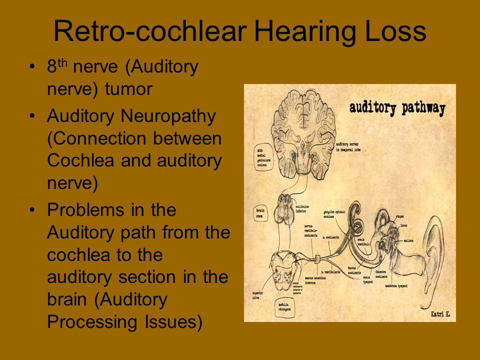 Retro-cochlear Hearing Loss 8 th nerve (Auditory nerve) tumor Auditory Neuropathy (Connection between Cochlea and auditory nerve) Problems in the Audi