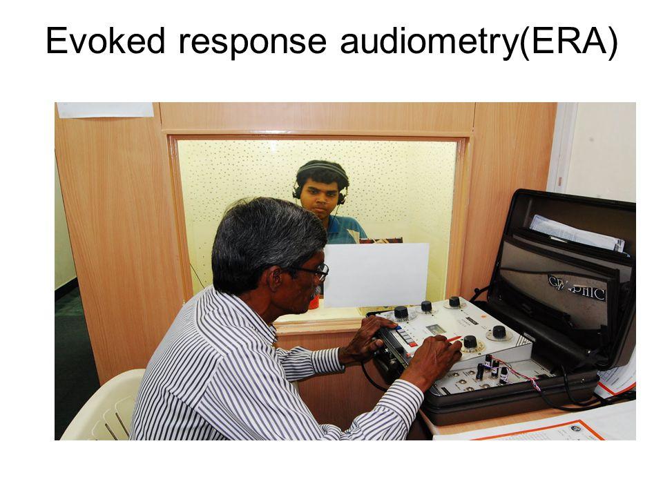 Evoked response audiometry(ERA)