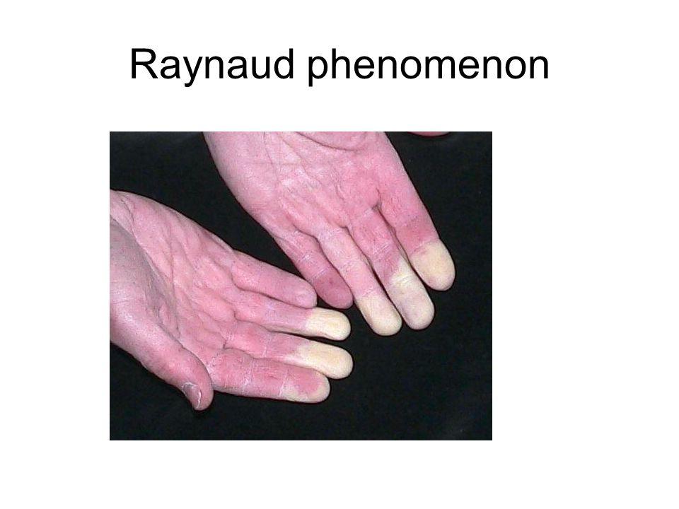 Raynaud phenomenon