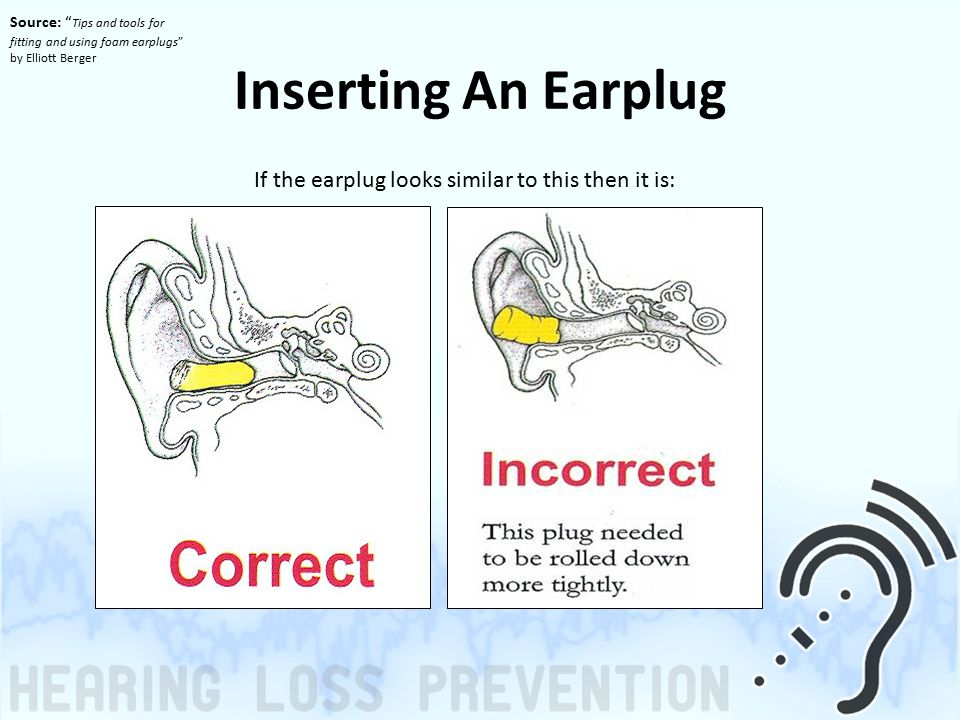 Inserting An Earplug If the earplug looks similar to this then it is: Source: Tips and tools for fitting and using foam earplugs by Elliott Berger