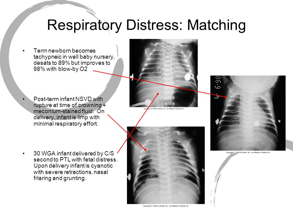 Respiratory Distress: Matching Term newborn becomes tachypneic in well baby nursery, desats to 89% but improves to 98% with blow-by O2 Post-term infan